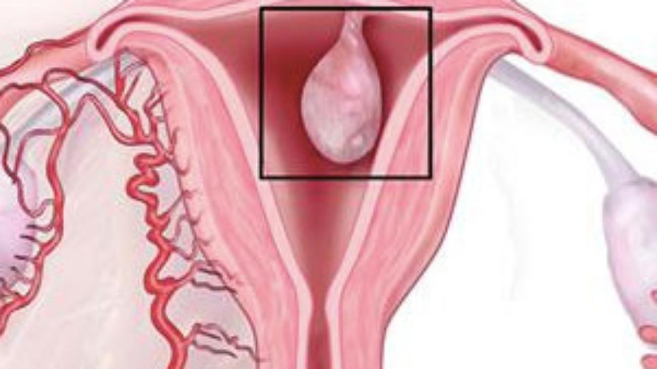 rahim-ici-polip-anatomi
